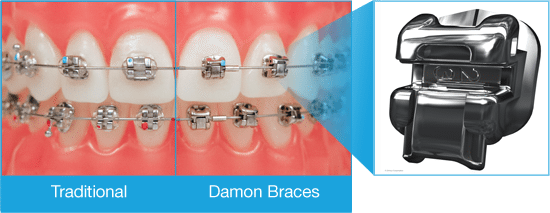 Damon-Choose-Compare-Braces