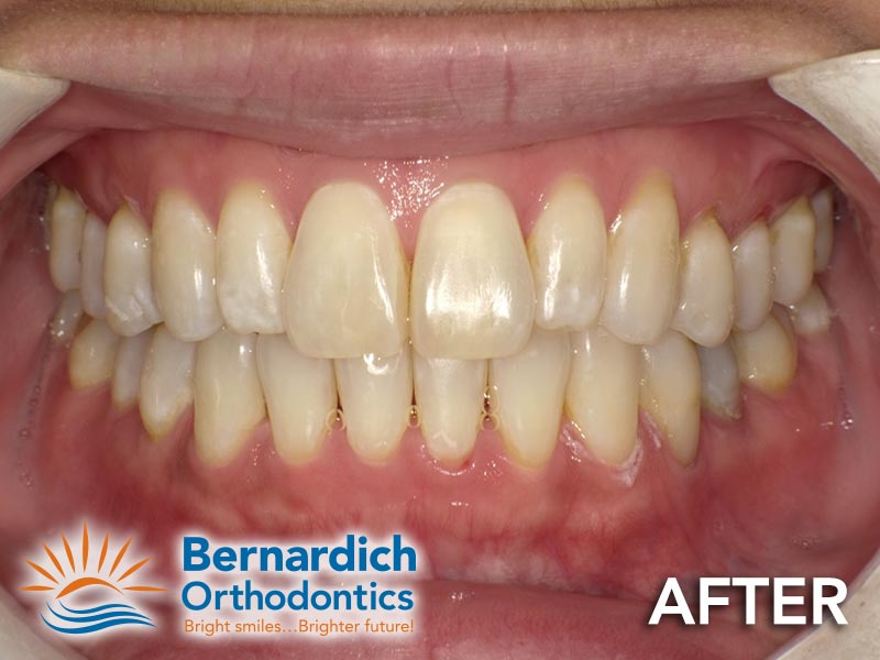 Crossbite after being fixed by Invisalign treatment at Bernardich Orthodontics.