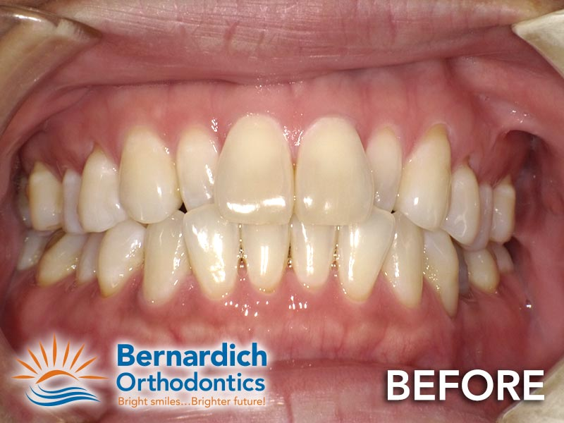 Crossbite before being fixed by Invisalign treatment at Bernardich Orthodontics.