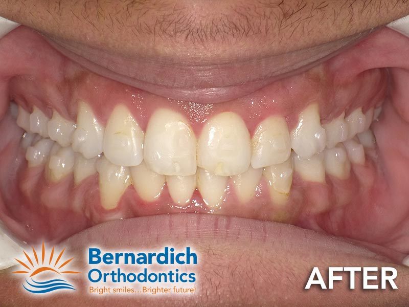 Dental crowding after being fixed by Invisalign treatment at Bernardich Orthodontics.