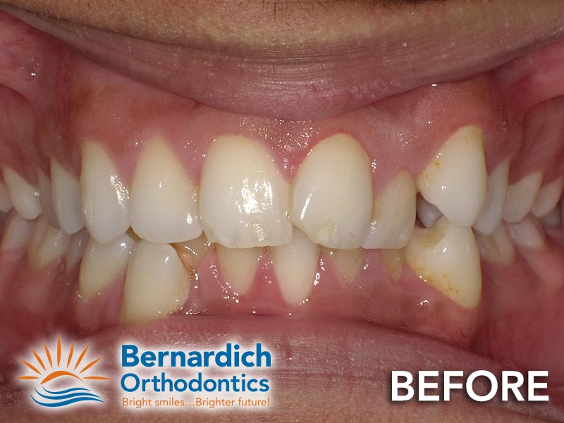 Dental crowding before being fixed by Invisalign treatment at Bernardich Orthodontics.