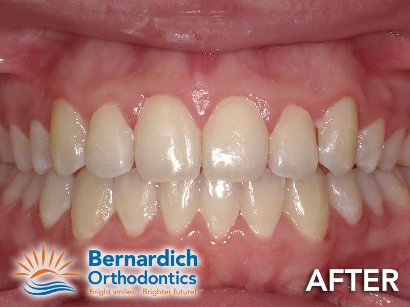 Dental crowding in a young patient after being fixed by Invisalign treatment at Bernardich Orthodontics.