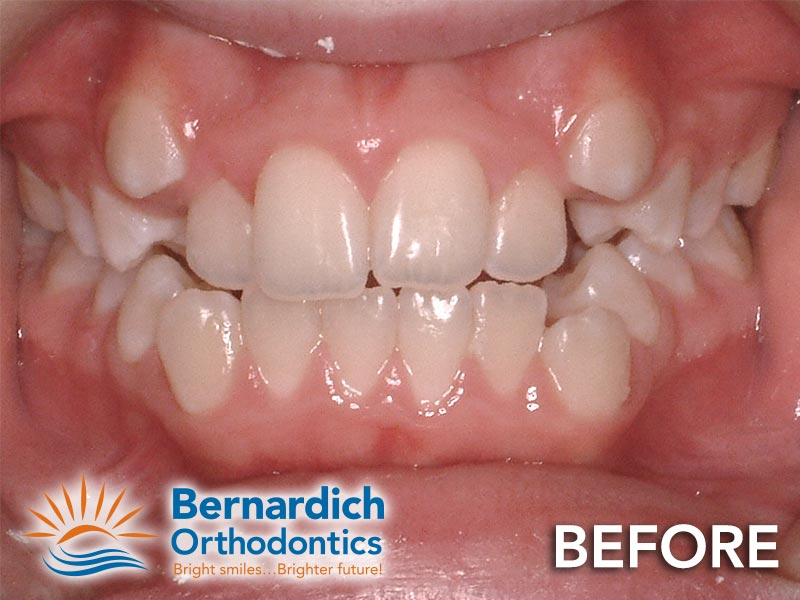 Dental crowding in a young patient before being fixed by Invisalign treatment at Bernardich Orthodontics.