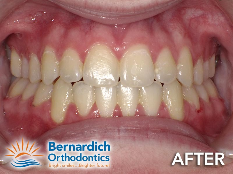 Open bite after being fixed by Invisalign treatment at Bernardich Orthodontics.