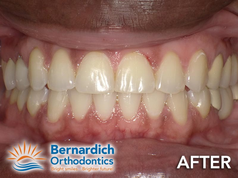 Spacing (diastema) after being fixed by Invisalign treatment at Bernardich Orthodontics.