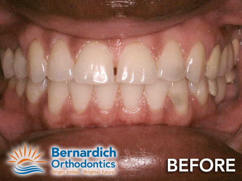 Spacing (diastema) fixed by Invisalign treatment at Bernardich Orthodontics.